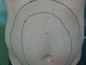 Liposuctie before anterior bucuresti marian simion