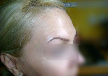 botox-marian-simion-bucuresti-6